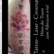 Tattoo – Laser – Cover Up – Wenn der Traum zum Albtraum wird